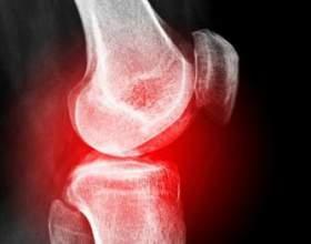 Забій коліна: перша допомога та лікування фото