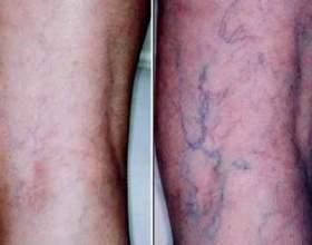 Збільшені вени на нозі - ознака варикозної хвороби фото