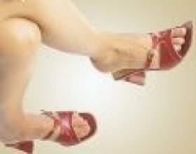 Лікування варикозного розширення вен фото
