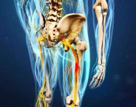 Защемлення нерва в нозі: симптоми. Як лікувати? Защемлення нерва в нозі при вагітності фото