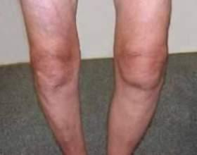 Рідина в колінному суглобі: лікування, симптоми, профілактика фото
